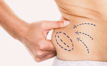 Liposucción sin cirugía: tipos