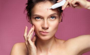 Alimentos a evitar si tienes acné