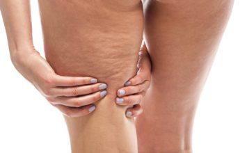 ¿Qué tratamientos son efectivos para eliminar la celulitis y la flacidez?