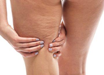 ¿Qué tratamientos son efectivos para eliminar la celulitis?