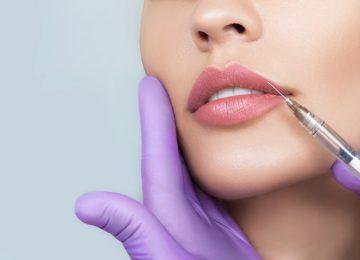 ¿Cómo es un aumento de labios con ácido hialurónico?