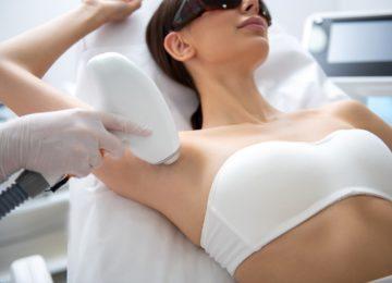 ¿Cómo funciona la depilación láser?