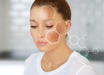 Manchas en la cara: causas de su aparición, tipos y cómo prevenirlas