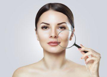 Cómo cuidar los rostros con piel grasa