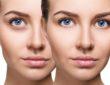 Remedios caseros para quitar las ojeras